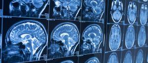 cientistas-descobriram-que-as-criancas-e-adultos-que-gaguejam-tem-menos-fluxo-sanguineo-na-area-do-cerebro-responsavel-pela-expressao-da-linguagem